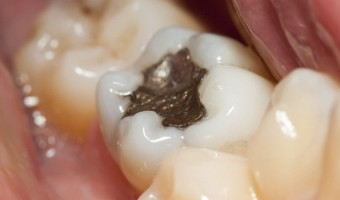 Amalgam Fillings – Toxic Beyond Belief